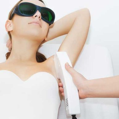 Everything you need to know about Laser Hair Removal/IPL